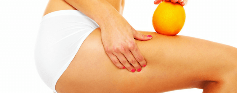 3 Ways to Reduce Cellulite