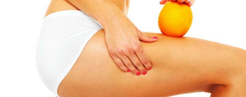 3 Ways to Reduce Cellulite
