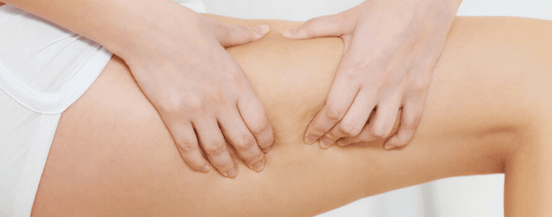 Cellulite Reduction 101: The Do's & Don'ts