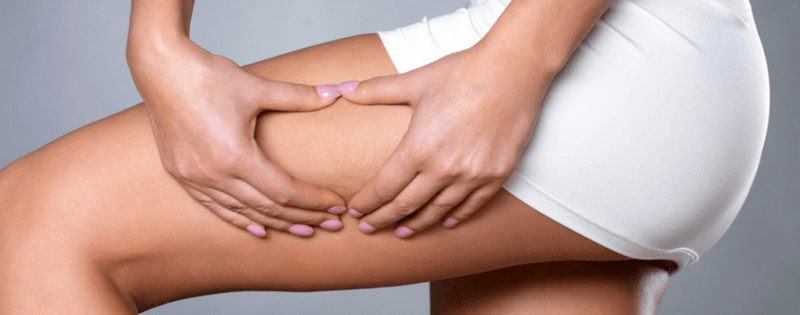 Your Guide To The Best Non-Invasive Cellulite Treatments