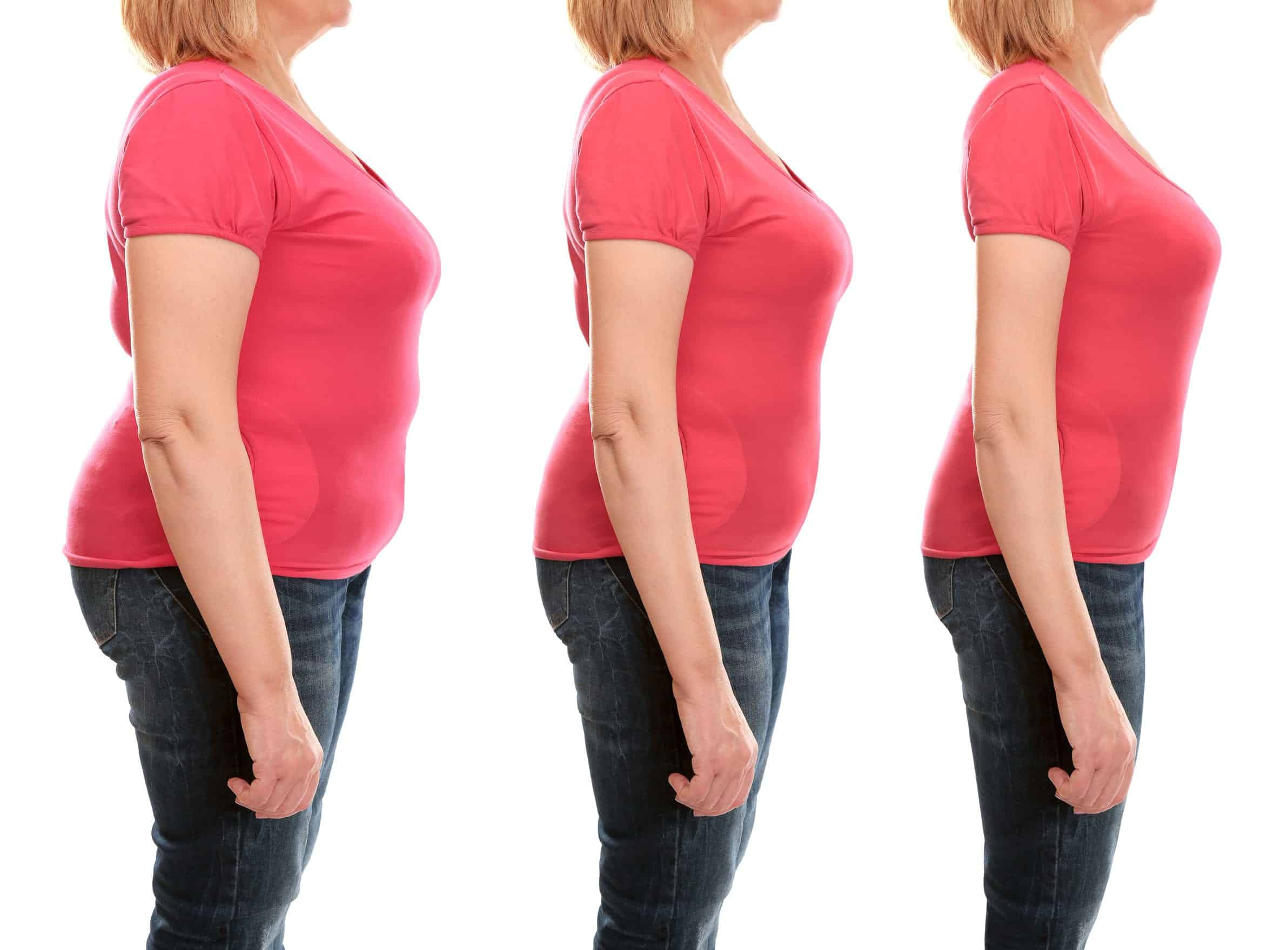 5 Common Areas of Body Fat CoolTech Can Target